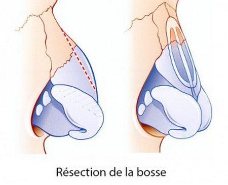 chirurgie bosse nez