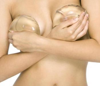 Bien choisir les implants mammaires