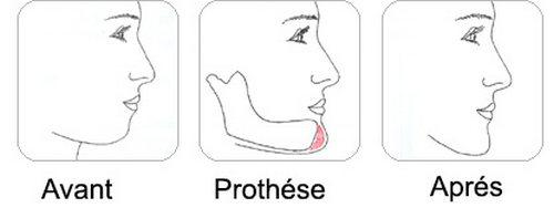 genioplastie-tunisie-prothese