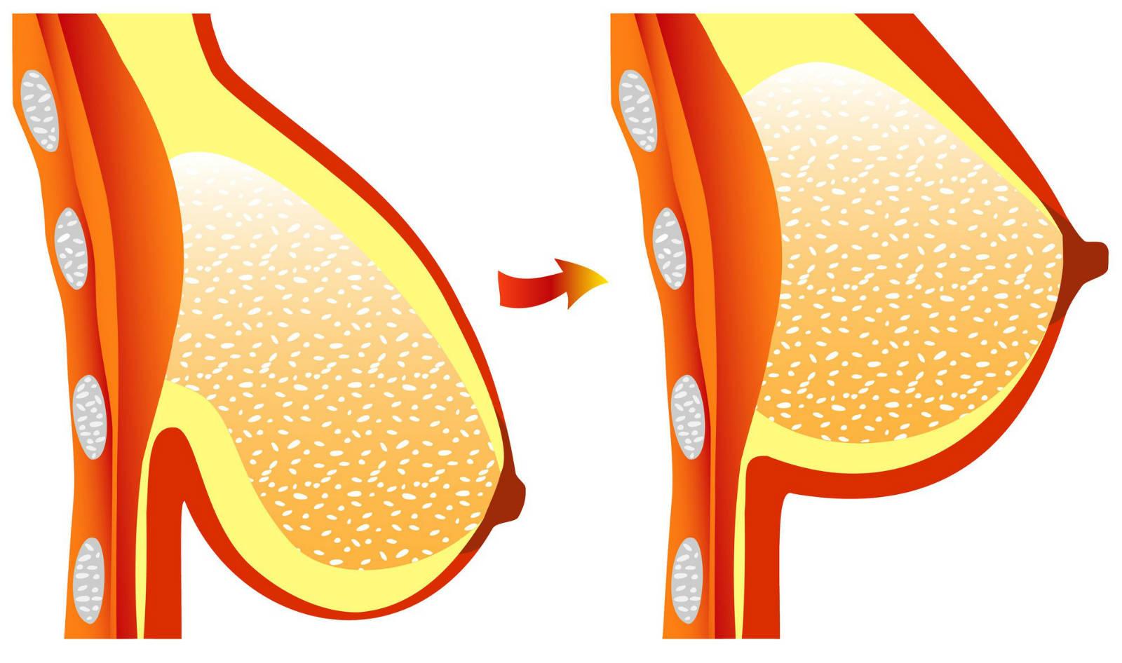 Les indications d'un lifting seins et les causes d'une ptôse mammaire