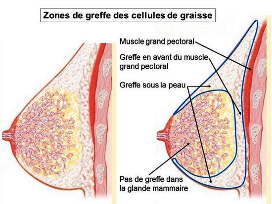 injection graisse seins