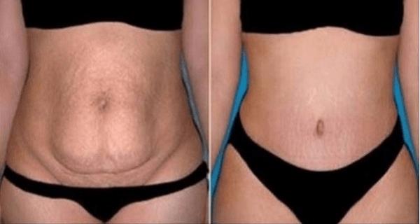 plastie abdominale tunisie