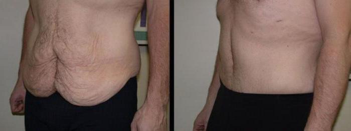 resultat-abdominoplastie-tunisie