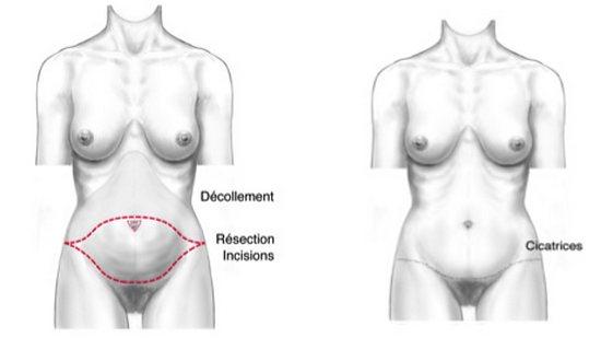 cicatrices-abdominoplastie-tunisie