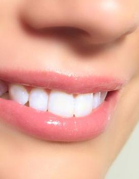 Comment choisir entre la facette, la couronne et l'implant dentaire ?