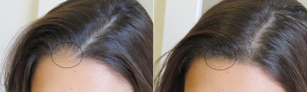 mesotherapie cheveux tunisie