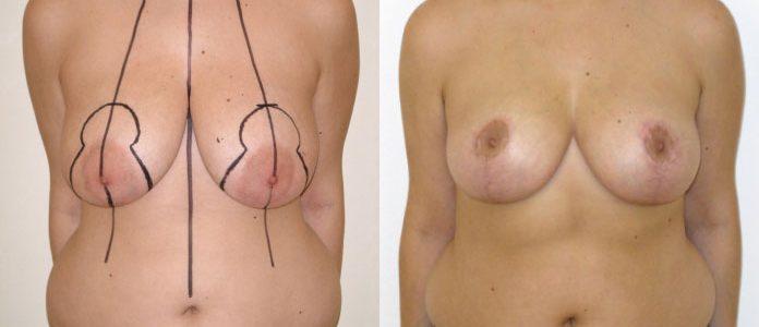 Particularité de la réduction mammaire