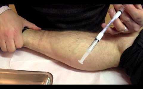 Sclérothérapie à la mousse pour traiter les varicosités