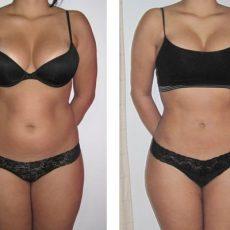 Comment garder le résultat de la liposuccion ?