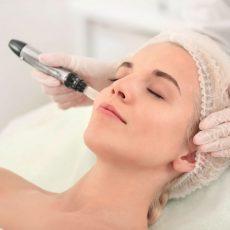 Hollywood peel : Une peau parfaite grâce au microneedling