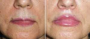 lip lift tunisie