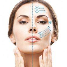 Facelift par ultrasons focalisés (HIFU) : Traiter le relâchement du visage