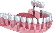 Quand envisager l'implantologie dentaire ?