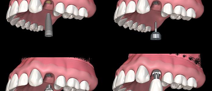 Quelle est la procédure de pose d'un implant dentaire ?