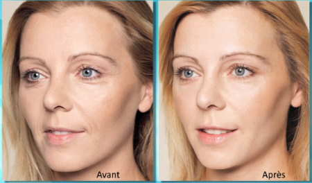 Bio revitalisation Restylane pour une peau éclatante