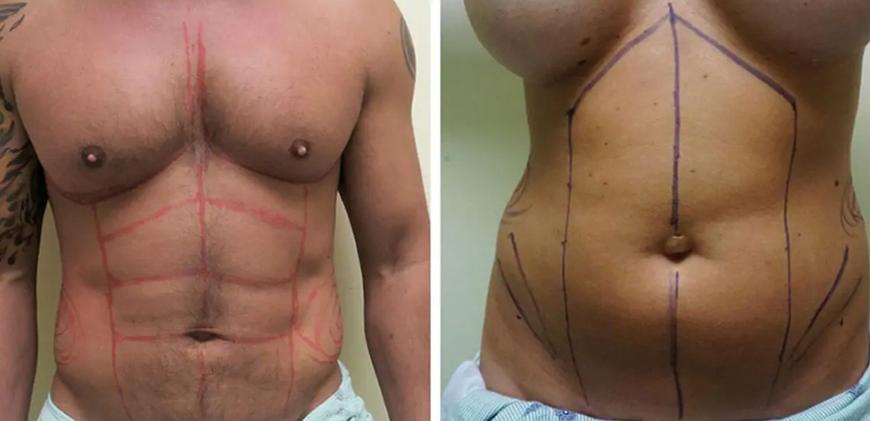abdominal etching