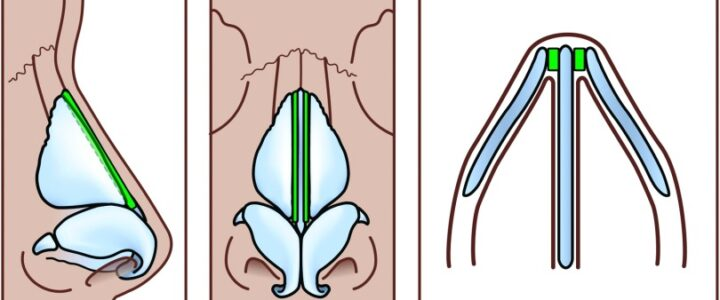rhinoplastie spreader grafts